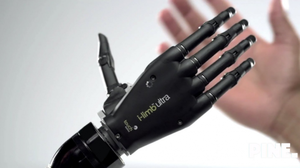 A Brief Discussion On Bionic Arm
