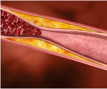 The Terrifying Truth About High Cholesterol