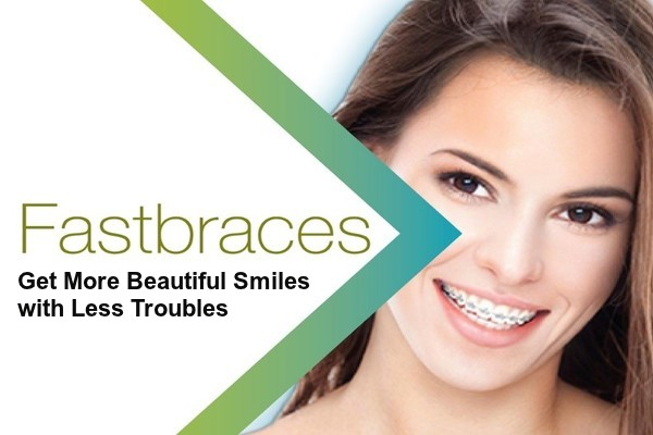 Fastbraces - Get More Beautiful Smiles With Less Troubles