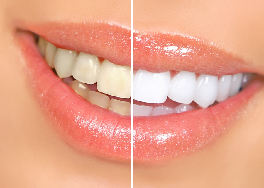 Professional vs Over The Counter Teeth Whitening