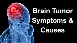 Brain Tumor: Know The Symptoms and Treatments Available