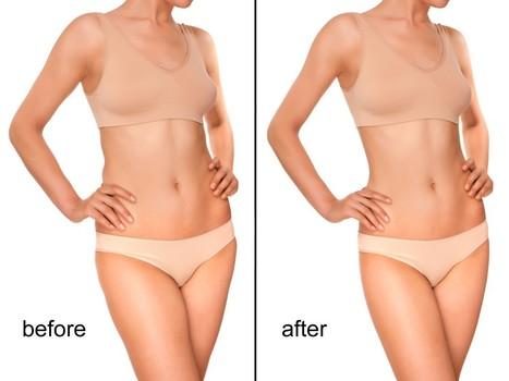 Liposuction in Ludhiana