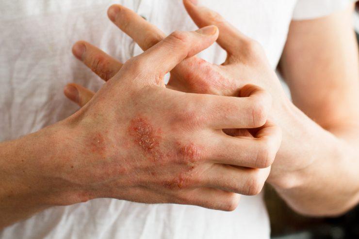 big blisters