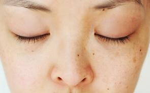 6 Dermatologist Approved Dark Spot Treatments