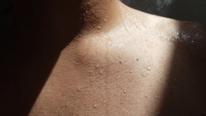 What Triggers Eczema and How To Avoid It?